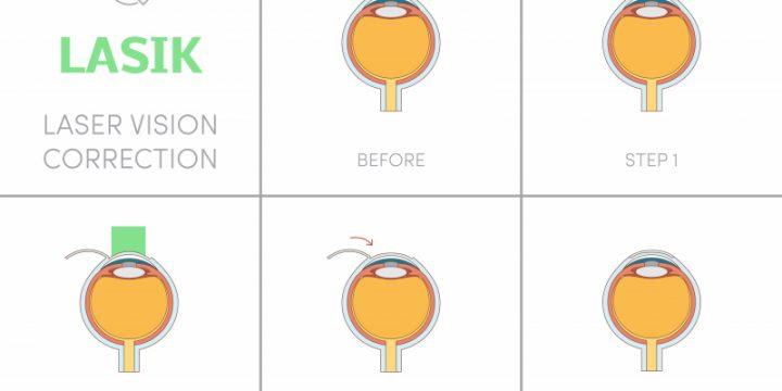 Ögonoperation med laser